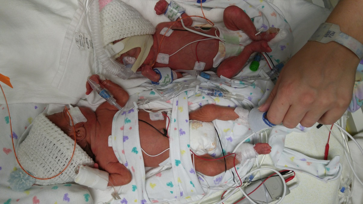 Premature Infants: Elephants in the Delivery Room